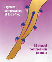 compression_stockings