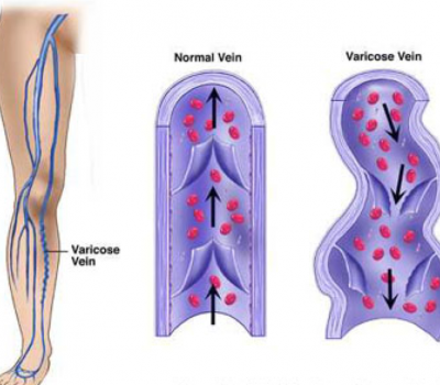 Venous-Hyptertension-1-400x350.png