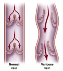 Venous Hypertension