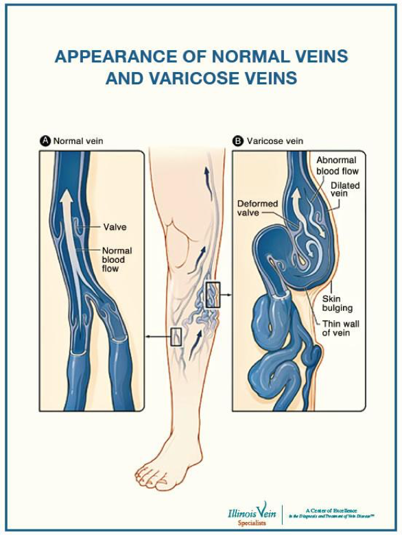 appearnce of normal vs. varicose veins.png