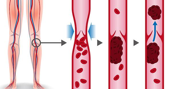 deep-vein-thrombosis image